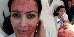 Kim Kardashian gets a vampire facial